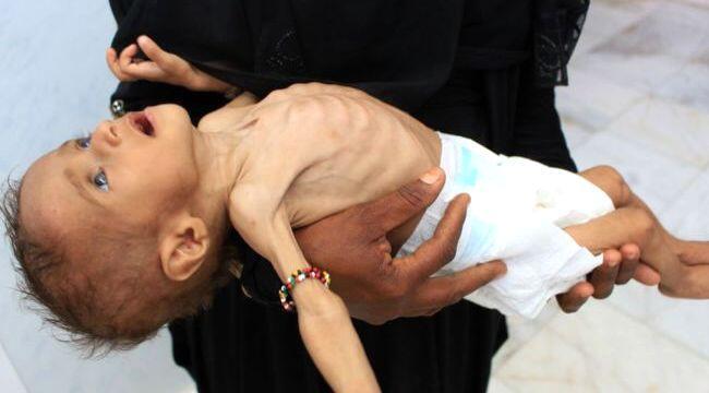 İç savaş sürerken Yemen'de neler oluyor